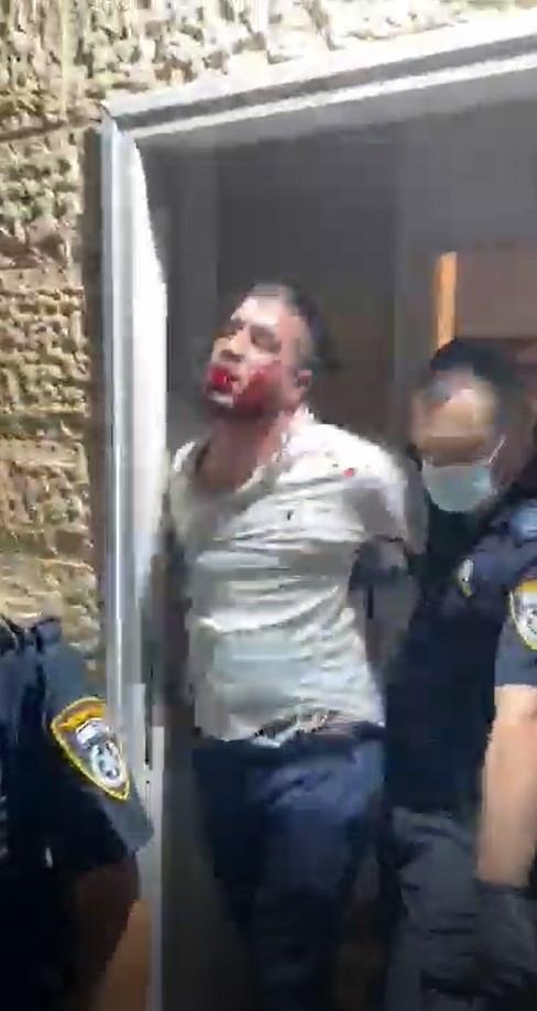עדות אחד מיני אלף על האכזריות ורשעותם של השוטרים
