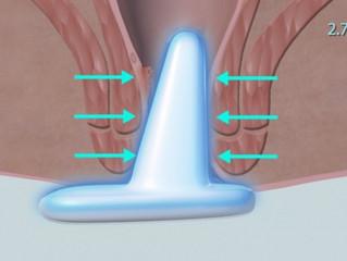 手術之後,如何處理痔瘡傷口?