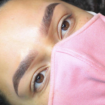 after brow.JPG