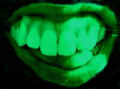 Green laughing mouth