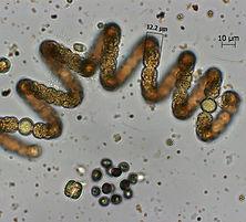 Phytoplankton anlysis WFD, HABs