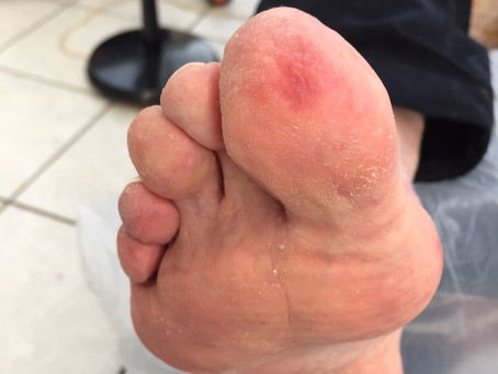 WHAT ARE... CHILBLAINS?