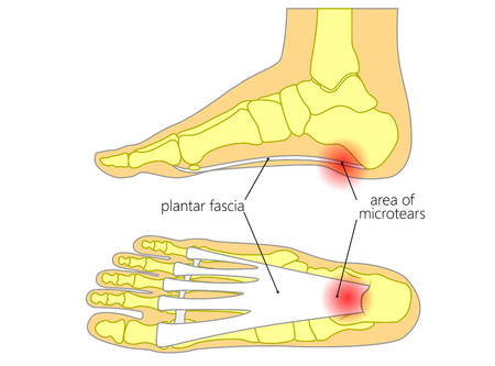 WHAT IS... PLANTAR FASCIITIS?