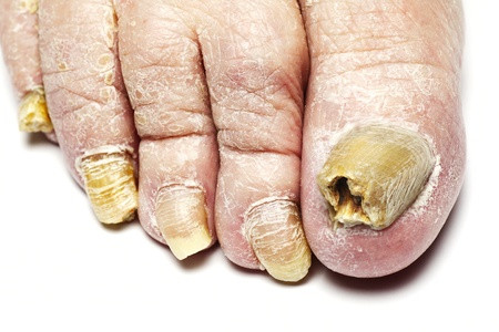 Oxford Chiropody - Fungal Infection