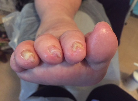 ON NAIL TUFTS AND 'HAEMS'.