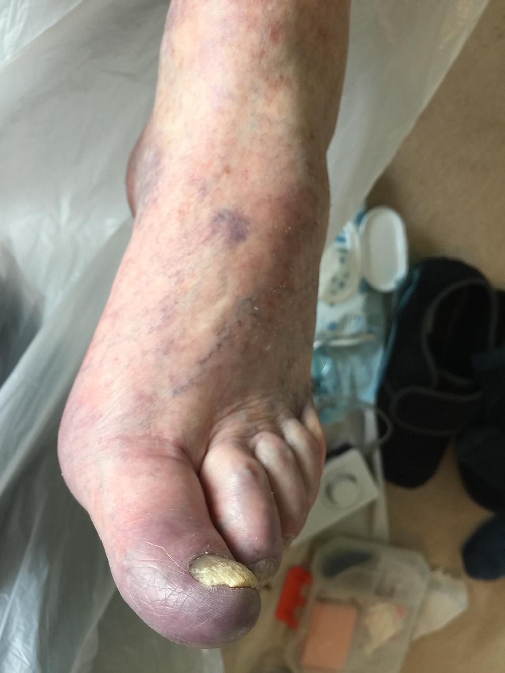 raynaud's foot