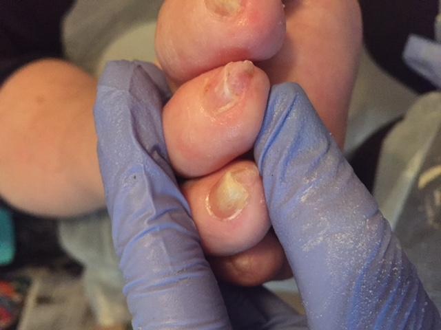 Nail Tuft (Close Up)