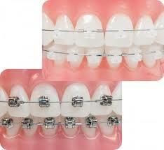 Sistema de ortodoncia Damon