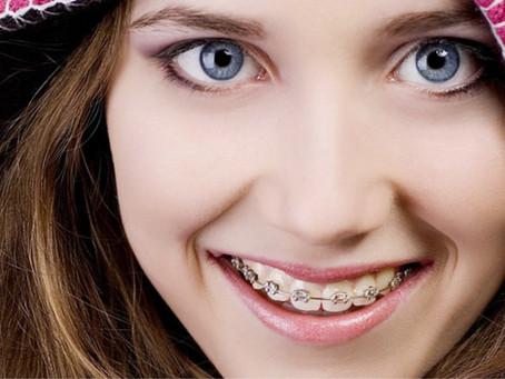 ¿Qué es y cómo funciona la Ortodoncia?