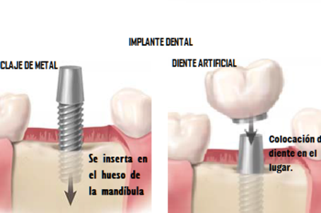 Tenga  en cuenta las  ventajas de los Implantes Dentales