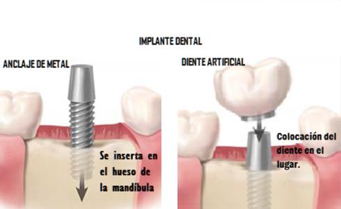 Partes de un implante