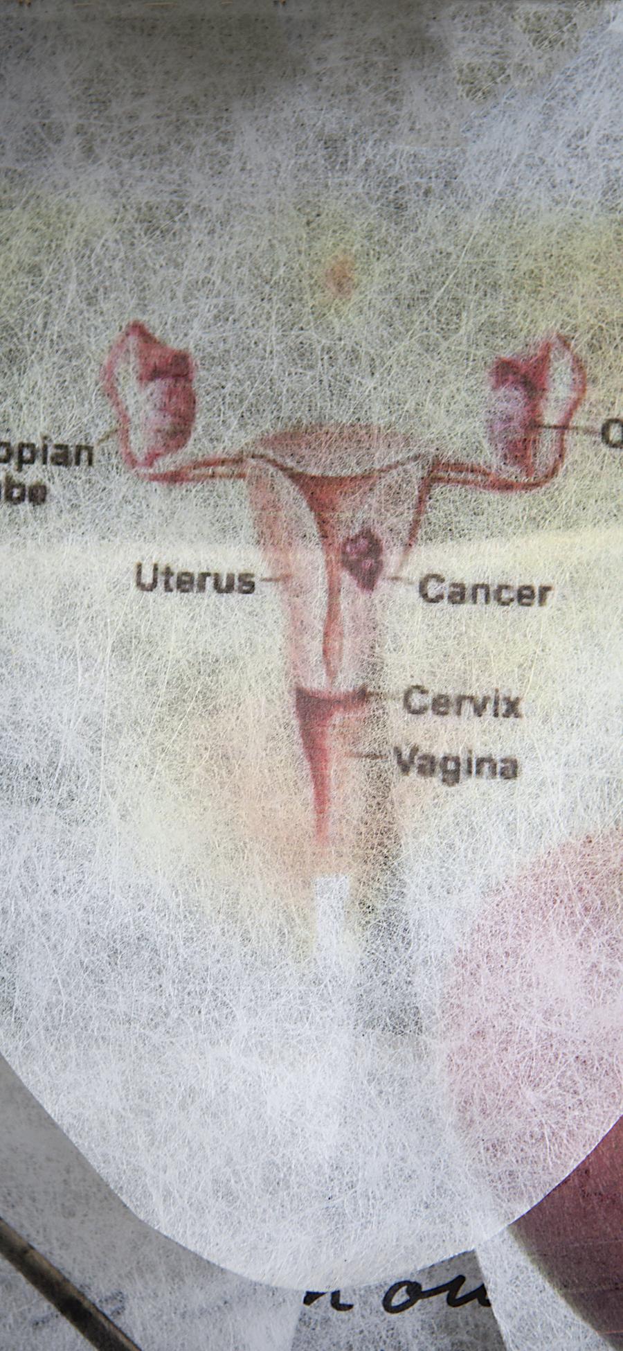 Cancer+Edit.jpg