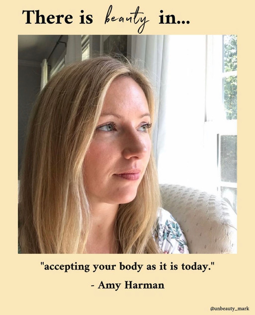 There is beauty in accepting your body as it is today.