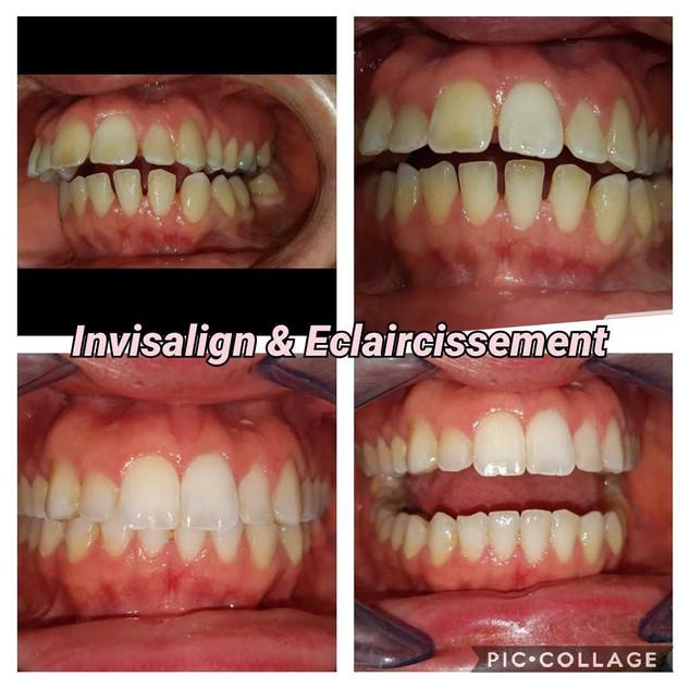 16 semaines de traitement par gouttières d'orthodontie Invisalign