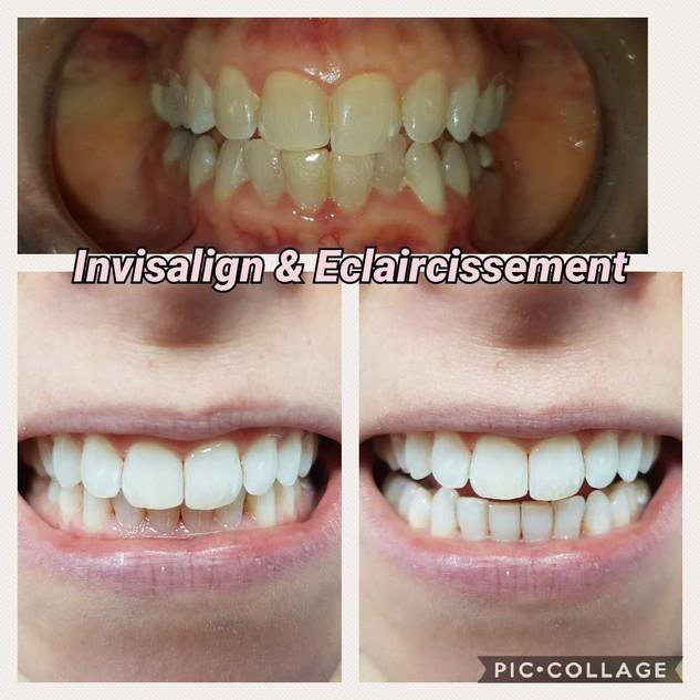 26 semaines de traitement par gouttière d'orthodontie Invisalign