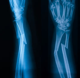 X-ray image of broken forearm, AP and la