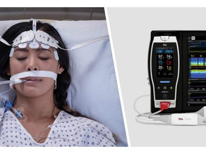 Research highlights importance of brain monitoring while treating critical COVID-19 patients