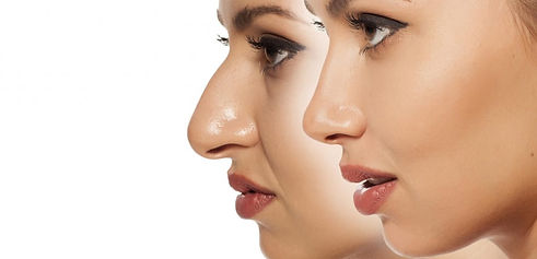 non-surgical_nose_job_edited.jpg