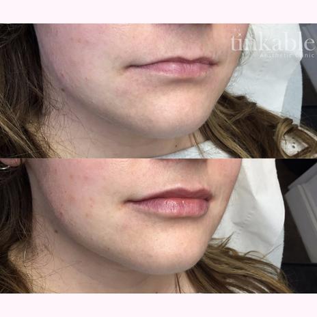 Lips 15 (CG).png