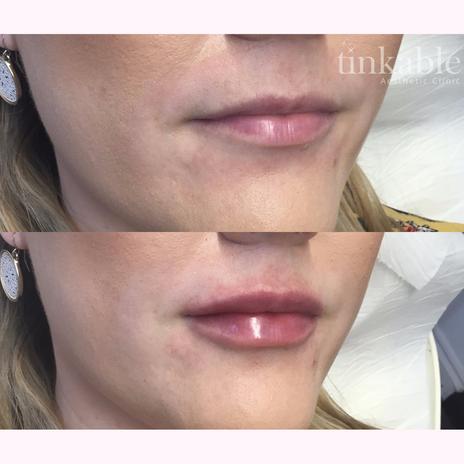 Lips 11 (CG).png