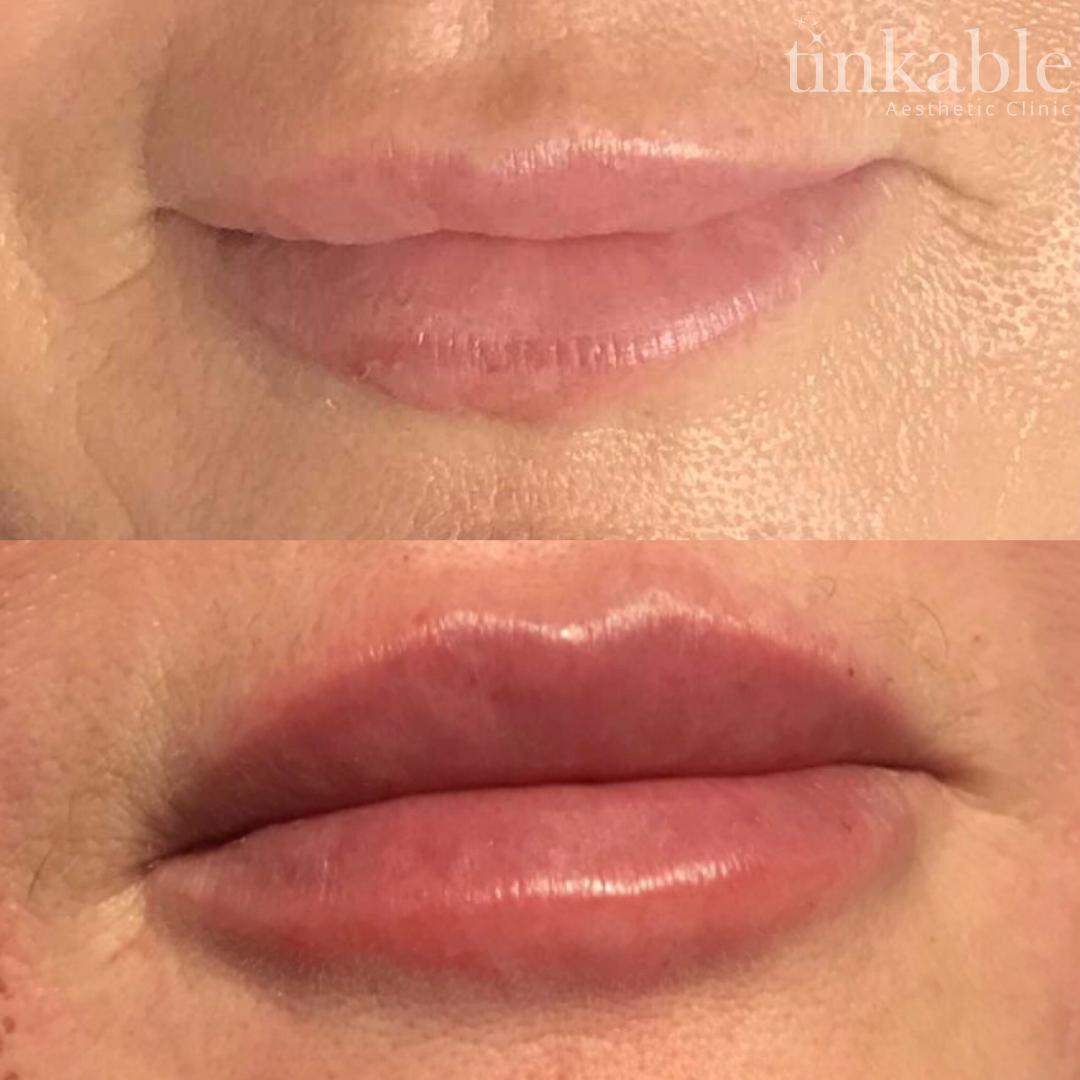 Lips 10 (Ashford).png