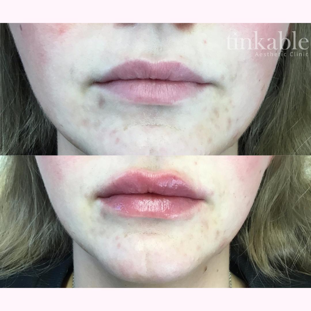 Lips 14 (CG).png