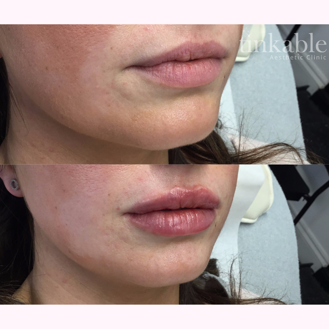 Lips 12 (CG).png