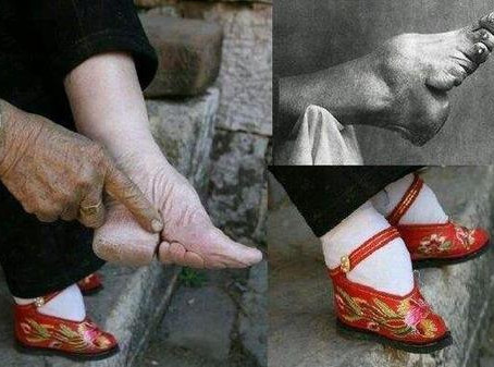 The Forbidden Practice of Foot Binding in China