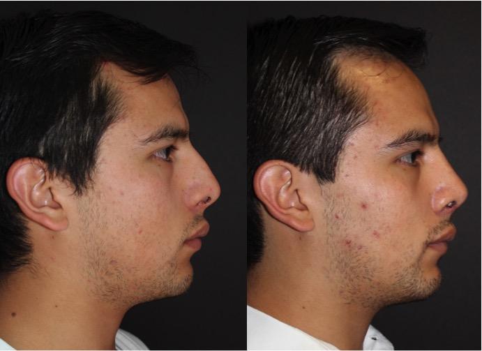 Reducción de joroba nasal
