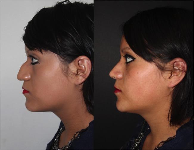 """Reducción de """"joroba nasal"""""""