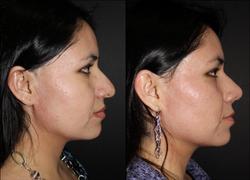 Rotación y definición de punta nasal