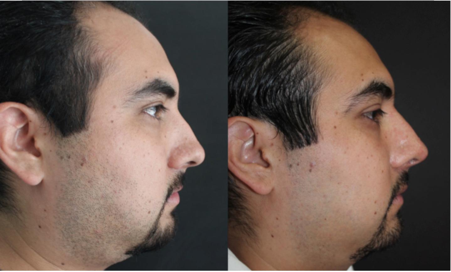 Reacomodo de punta nasal