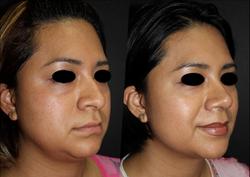 Reacomodo de piramide y punta nasal