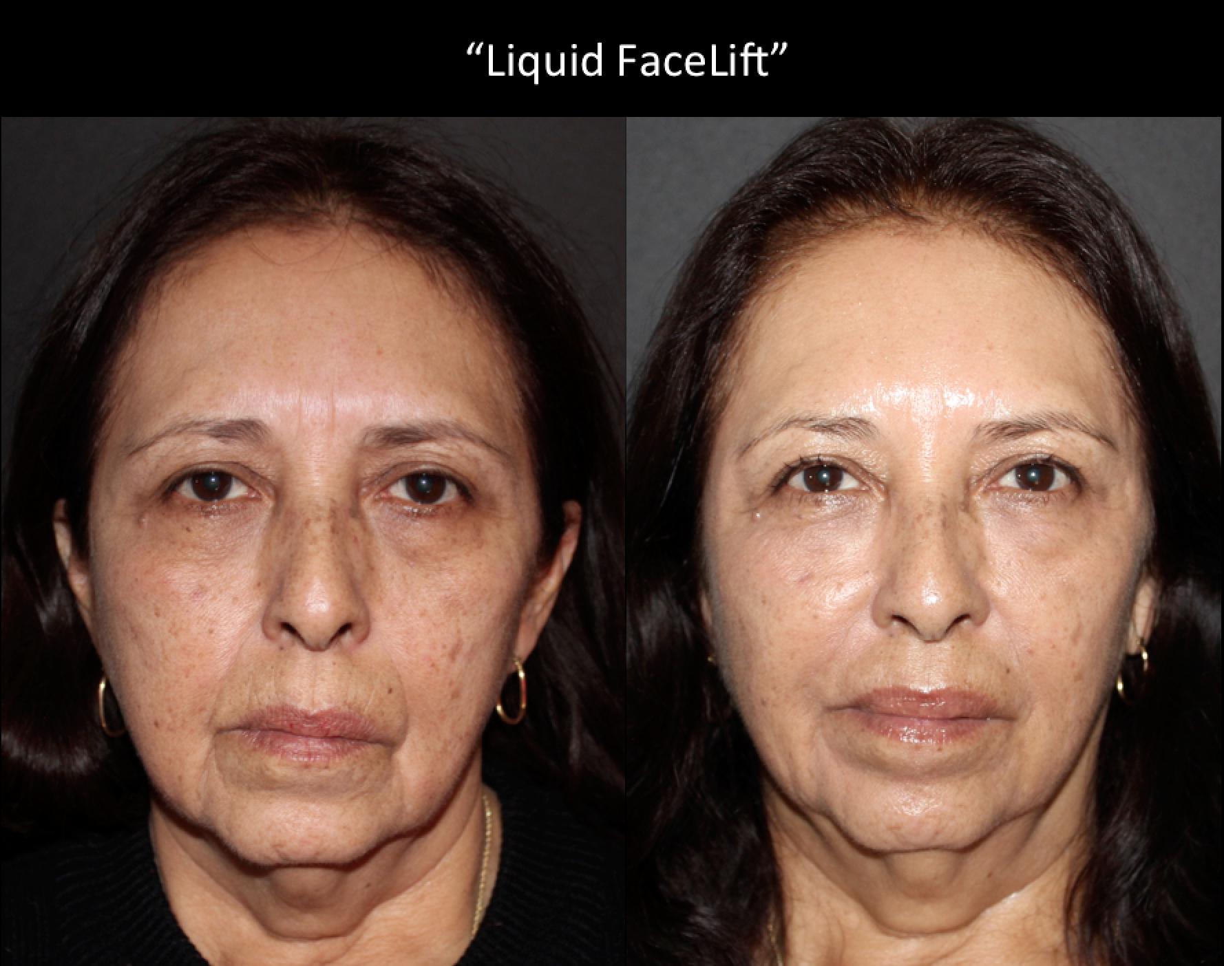 """""""Liquid FaceLift"""""""