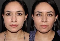 Cirugia de punta, base y dorso nasal