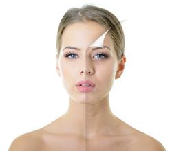 Refrescamiento Facial