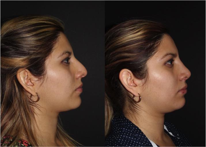 Trabajo de giba nasal
