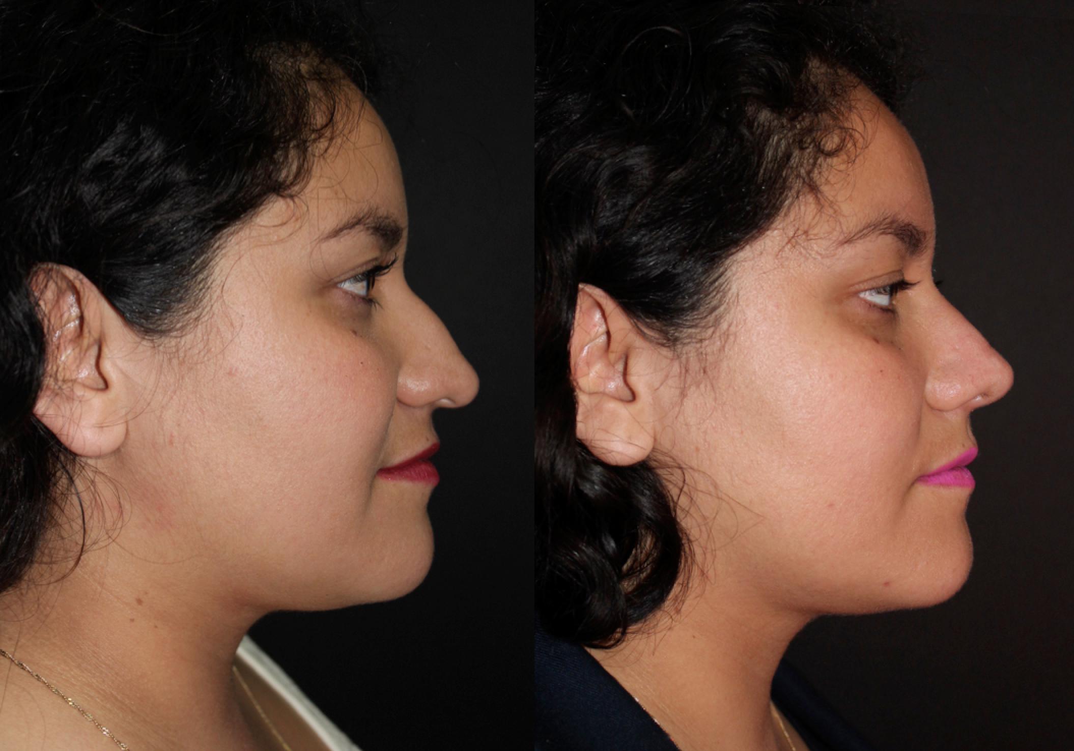 Gibectomia y rotación nasal