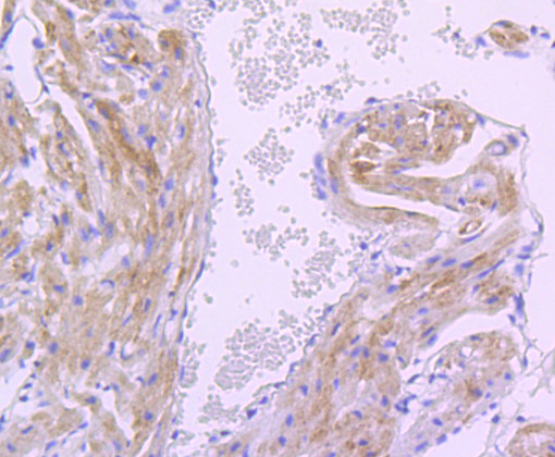 PDK1 Recombinant Rabbit monoclonal Antibody IgG