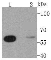 Glutaminase Recombinant Rabbit monoclonal Antibody IgG