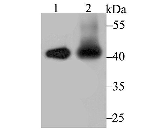 IL12B Rabbit polyclonal Antibody IgG
