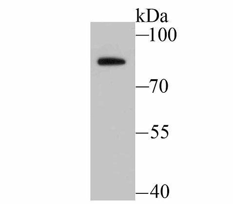 BDKRB2 Recombinant Rabbit monoclonal Antibody IgG