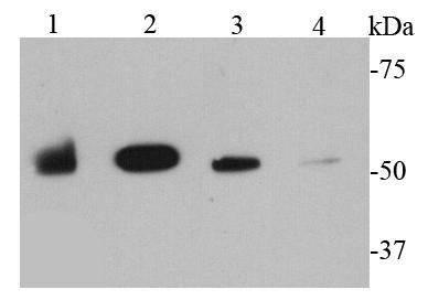 MMP1 Rabbit polyclonal Antibody IgG