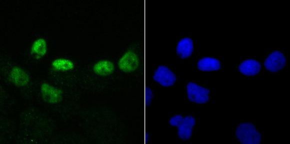DKC1 Recombinant Rabbit monoclonal Antibody IgG