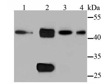 Cathepsin D Rabbit polyclonal Antibody IgG