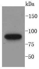 MLH1 Recombinant Rabbit monoclonal Antibody IgG