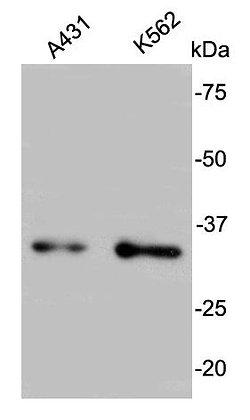 BCL2L1 Rabbit polyclonal Antibody IgG
