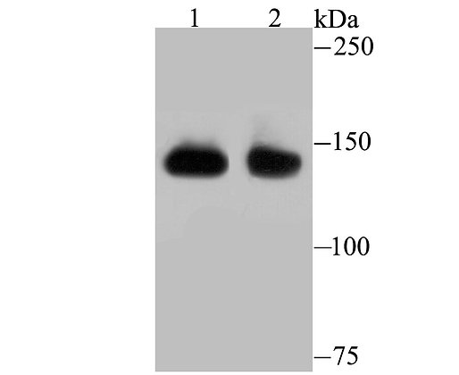 SF3B1 Recombinant Rabbit monoclonal Antibody IgG