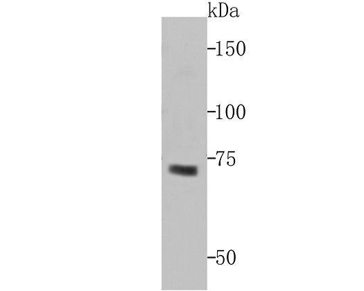 Hemagglutinin-neuraminidase Rabbit polyclonal Antibody IgG