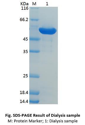 Recombinant Human Fascin/FSCN1